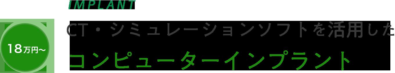 IMPLANT 18万円~ CT・シミュレーションソフトを活用した コンピューターインプラント