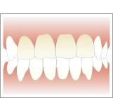 歯の色をチェック
